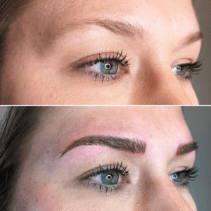 Microblading Treatment Before and After