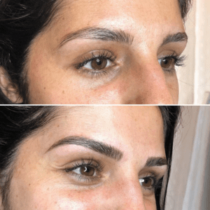 Microblading before and after na derm